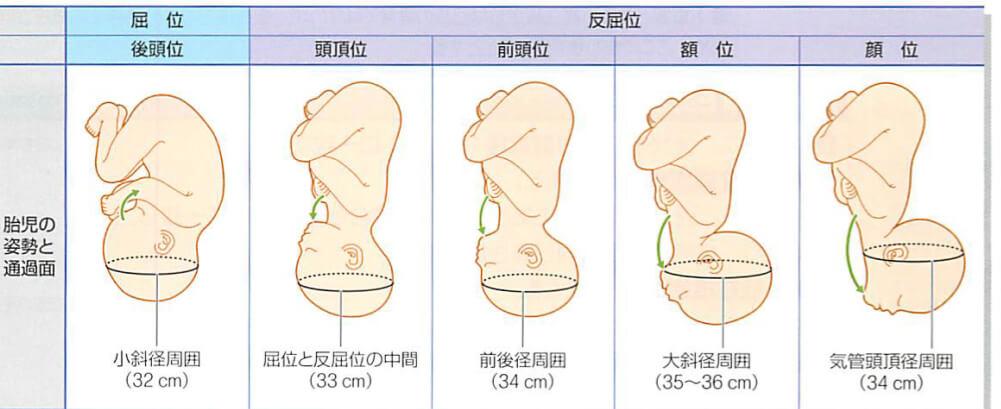 胎勢の違いについて 後頭位 前頭位 額位 顔位の違いについて
