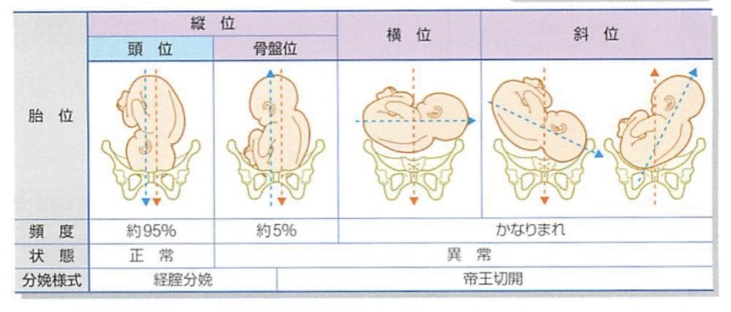 胎児の異常 頭位 骨盤位 横位 斜位 の違い