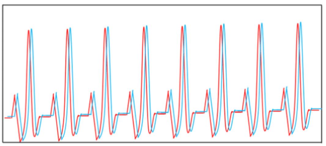 〇秒ずらした時の心電図
