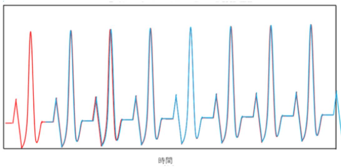 □秒ずらした時の心電図