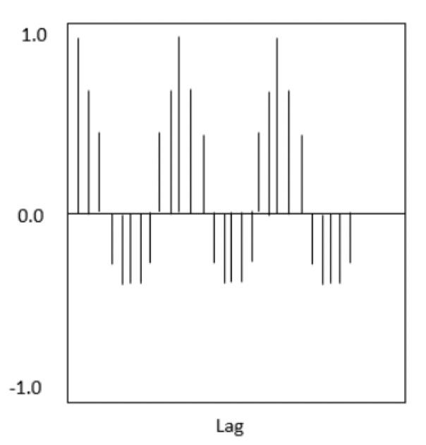 心電図のコレログラムのイメージ